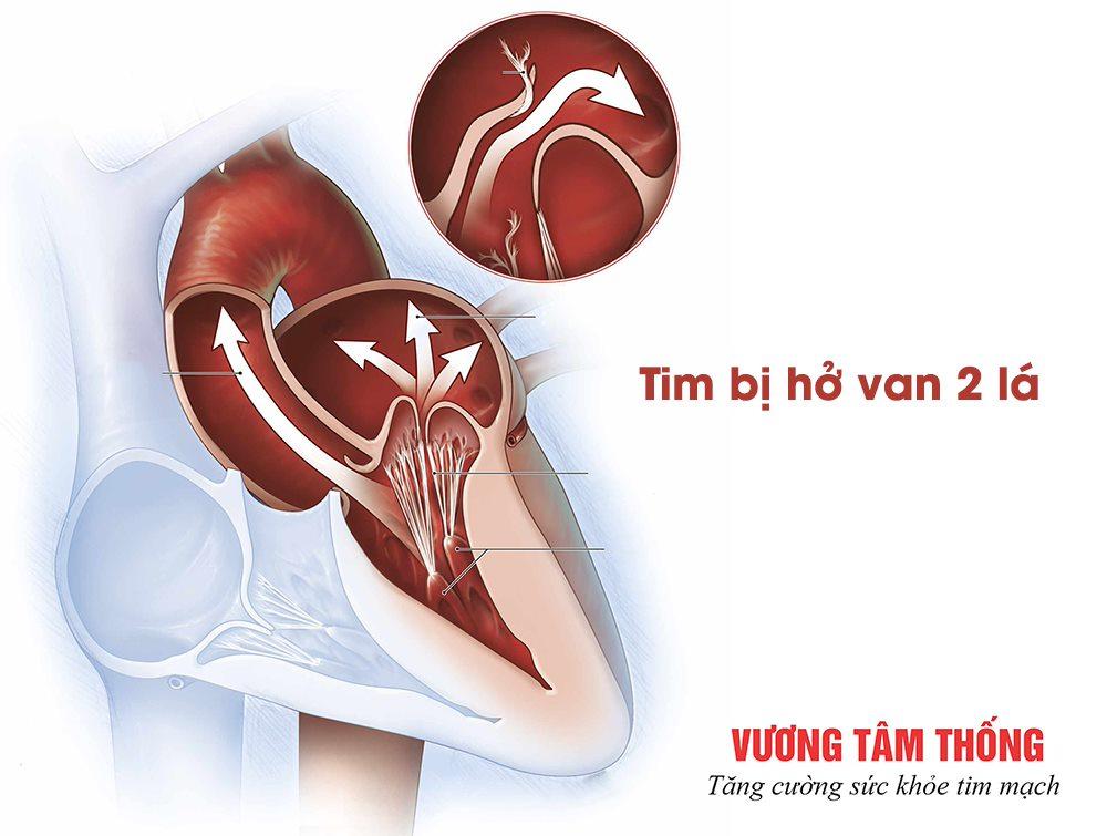Hở van tim 2 lá khiến máu bị trào ngược qua van về nhĩ trái